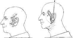 Figure1. Possibly the first description of a facelift. This drawing was copied from Dr. Passot's book La chirurgie esthe´tique des rides du visage, which was published in 1917.
