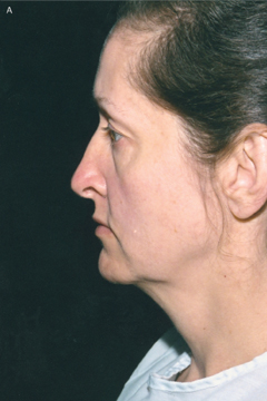 Figure 8. (a) A patient before facelift surgery from the lateral view.