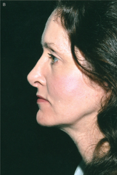Figure 8. (b) After the technique described in this article. The patient also had rhinoplasty and blepharoplasty.