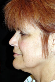64-year-old white female three years post-op from QuickLift, volume of brow and lips, and Hetter's peel to the eyelids.