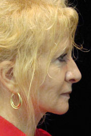 67-year-old white female five years post-op from QuickLift and upper lid blepharoplasty.