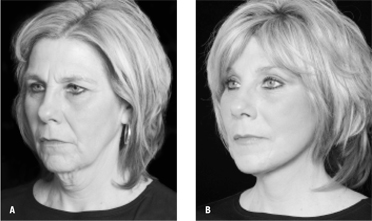 Figure 4: A) A patient before the QuickLift™ with the encircling double purse-string plication technique. B) Twelve months after the procedure