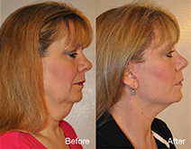 Paula's QuickLift Face Lift before and after photos